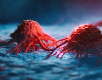 الخلايا السرطانية